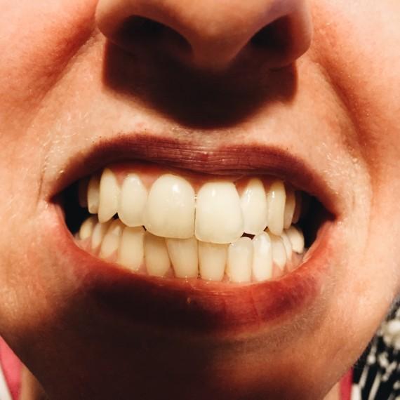 Teeth Whitening Staten Island